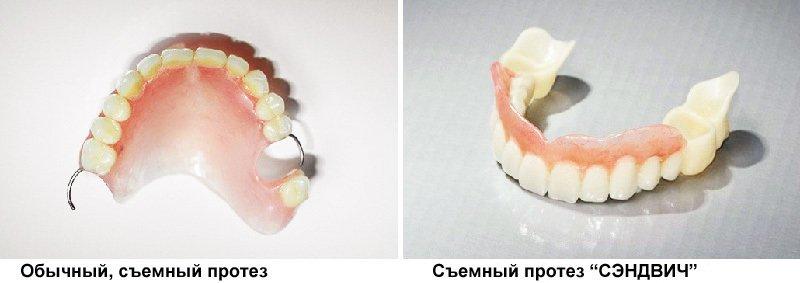 Съемные зубные протезы нового поколения цена