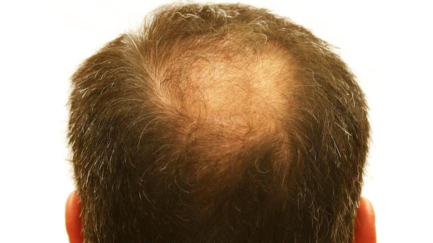 Корейские ученые создали препарат отоблысения, который заставляет волосы быстро расти